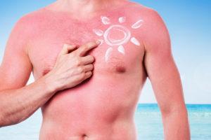 C'est l'été, il fait beau, chaud et les journées sont longues. Le soleil peut vite devenir l'ennemi de votre peau.